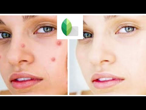 photo edit How to remove pimples and clear face in snapseed by (ratul zone)